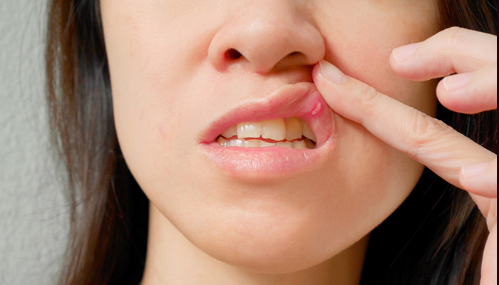 cómo quitar llagas de la boca rápido