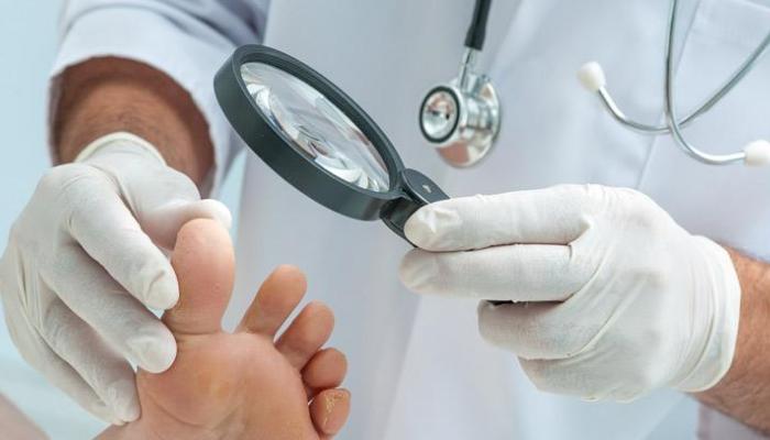 Cómo quitar los hongos de las uñas de los pies