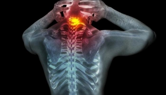 Cómo quitar contracturas del cuello