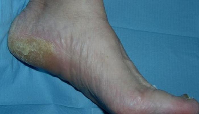 Hiperqueratosis o dureza de los pies: