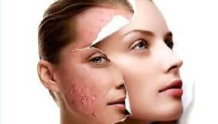 Cómo quitar puntos negros en la cara eficazmente