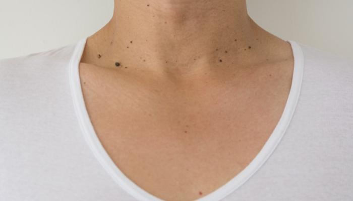 Sonsejos para evitar accidentes con las verrugas pequeñas del cuello