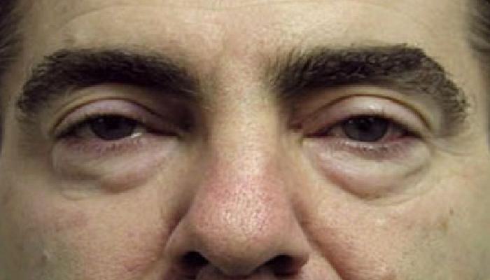 6 Trucos caseros para quitar las bolsas de los ojos al instante