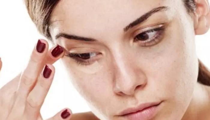 ¿Qué son las bolsas de los ojos?