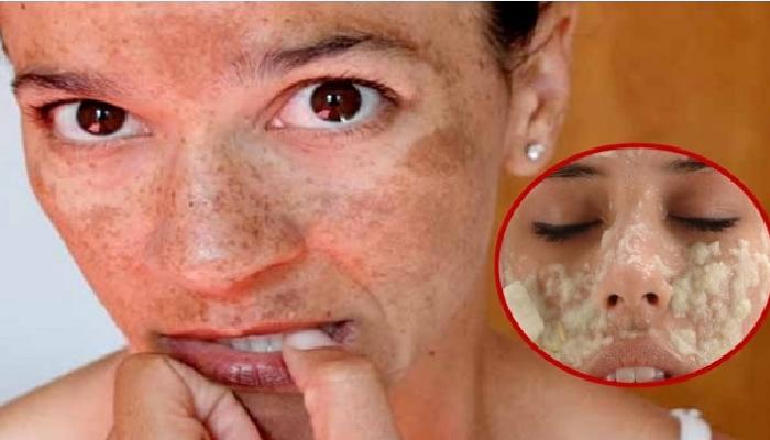 Cómo quitar las manchas de sol de la cara