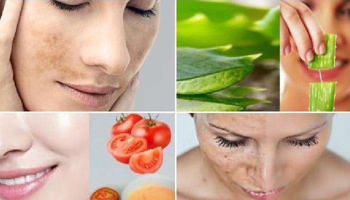8 remedios caseros para quitar las manchas de sol de la cara: