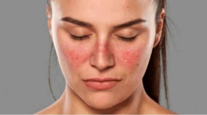 Cómo quitar manchas rojas de la cara