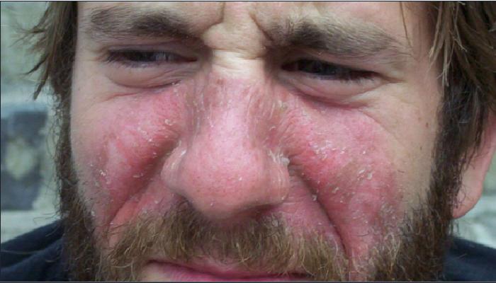 3 remedios caseros para quitar las manchas rojas de la cara: