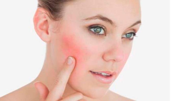 Cuidado personal y estilo de vida que pueden servirte para controlar las manchas rojas en la cara: