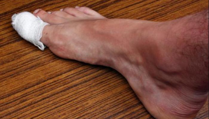 Cómo quitar un uñero del pie