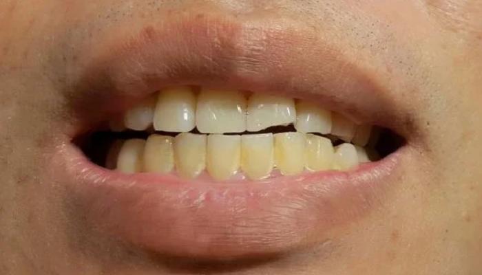 Tipos de manchas de los dientes que existen: