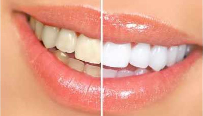 Tratamientos odontológicos para quitar las manchas de los dientes: