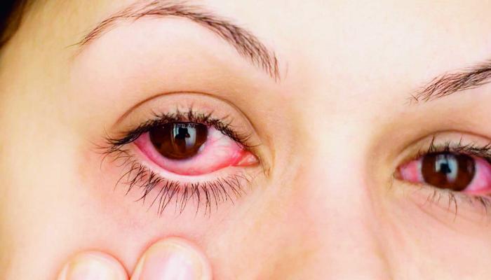 Recomendaciones útiles para evitar infecciones o lesiones por el uso de lentillas