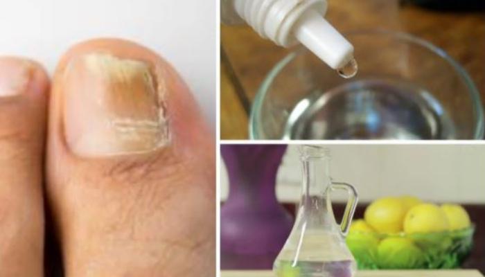 Cómo quitar los hongos de las uñas de los pies rápido