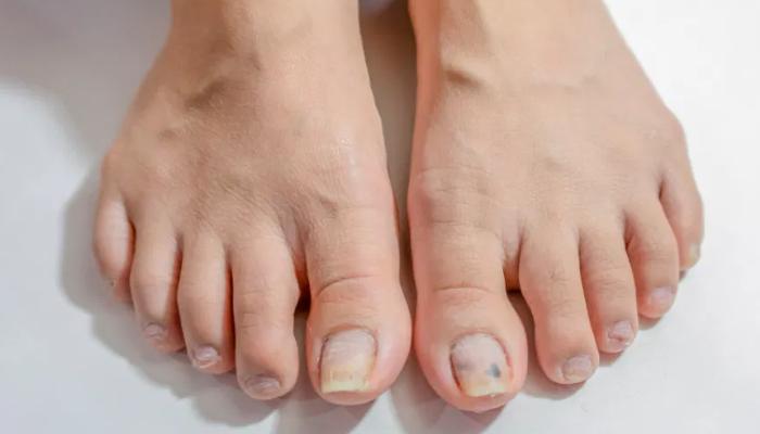 Qué puede originar los hongos en las uñas de los pies
