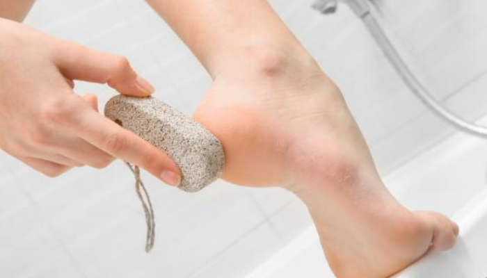 10 Maneras de prevenir callos en los pies: