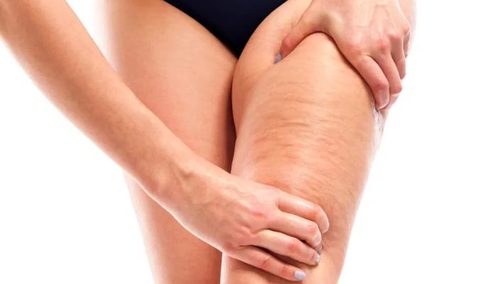 Cómo quitar la grasa de las piernas