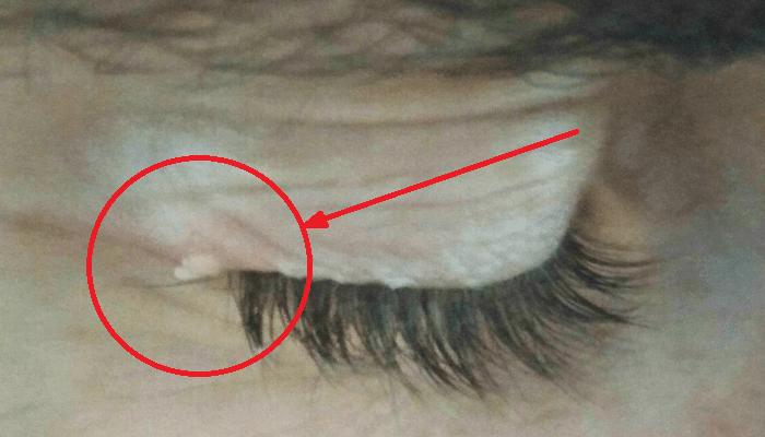 Sorprendentes consejos de Cómo quitar una verruga del párpado sin hacer daño al ojo.