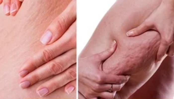 Cómo quitar la celulitis en las piernas,