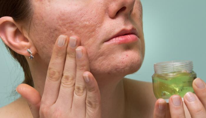 Los mejores trucos para quitar cicatrices de granos de la cara en casa: