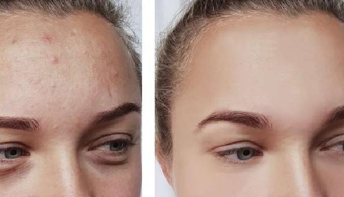 3 Fórmulas para eliminar las espinillas del rostro en una noche