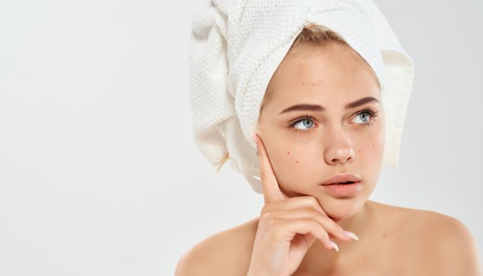 Consejos y recomendaciones para combatir el acné