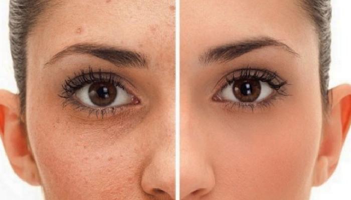 cómo quitar manchas de acné rápido