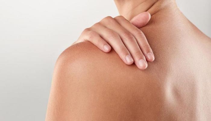 Quitar las manchas de acné