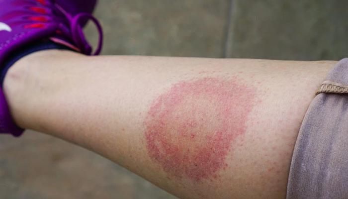 Qué se debe hacer en caso de haber sido picado por una garrapata