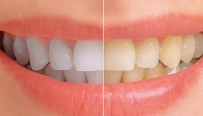 Cómo quitar diferentes tipos de manchas en los dientes