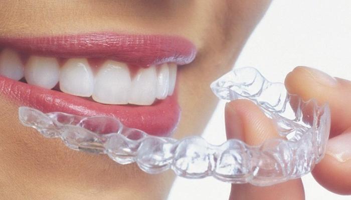 Cómo quitar manchas de los dientes-acudir al odontologo