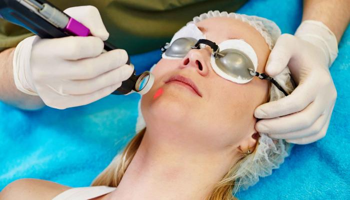 Cómo quitar verrugas pequeñas con tratamientos médicos