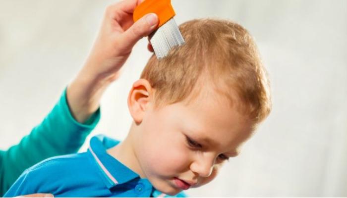 Cómo quitar las liendres pegadas al pelo con métodos caseros