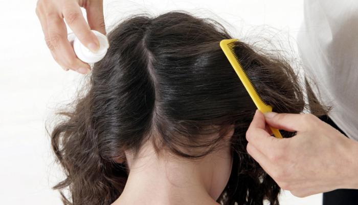 Cómo quitar las liendres pegadas al pelo de los niños