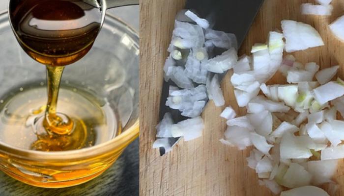 Con la efectividad de cebolla y miel lograrás eliminar la afonía en minutos