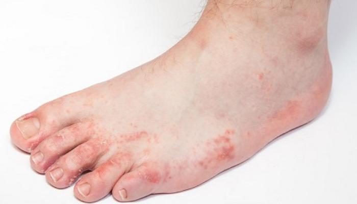 Fórmulas efectivas para quitar los hongos de los pies.