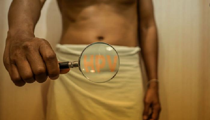 Cómo quitar verrugas del pene, conociendo que es el VPH