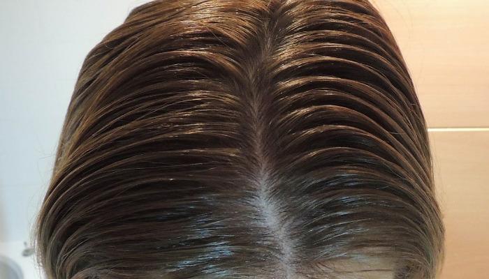 Aquí te informaremos cómo combatir la grasa del pelo con remedios caseros