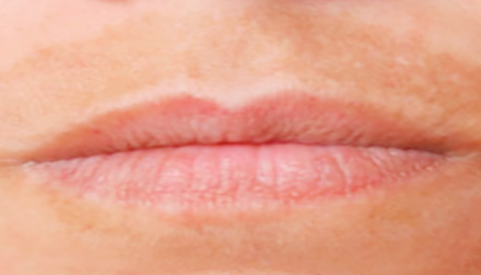 Si conoces los factres que producen las manchas del bigote mas rápido la eliminarás