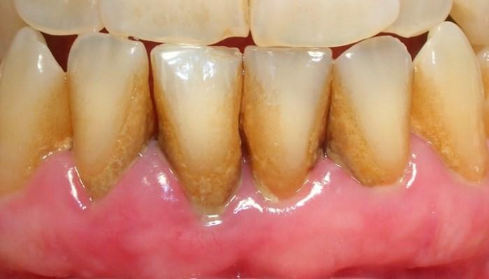 Cómo quitar el sarro de los dientes sin moverte de tu casa