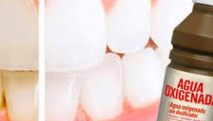 Cómo quitar el sarro de los dientes con agua oxigenada
