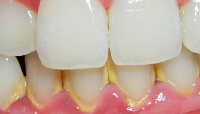 Cómo quitar el sarro de los dientes - sin moverte de tu casa