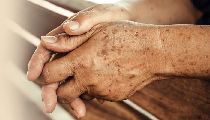Cómo quitar las manchas de las manos