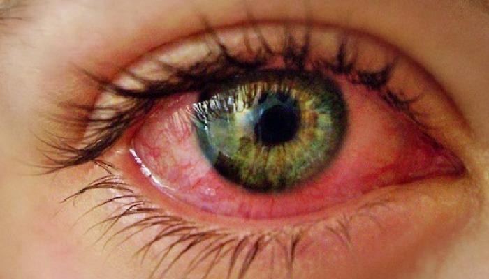 Como quitar ojos rojos