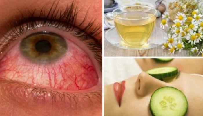 Para quitar ojos rojos prueba estos tratamientos caseros