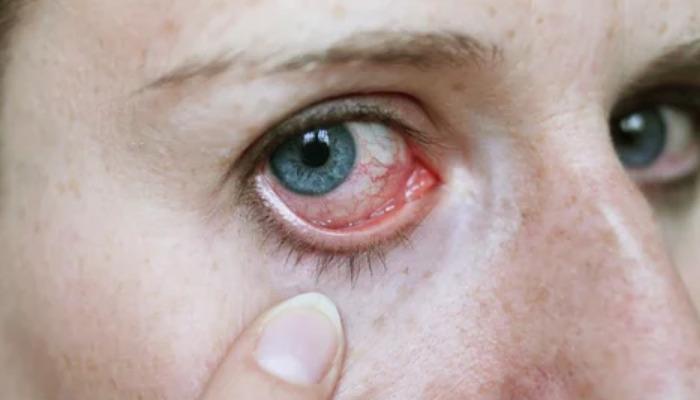 Sigue estos consejos para evitar ojos rojos