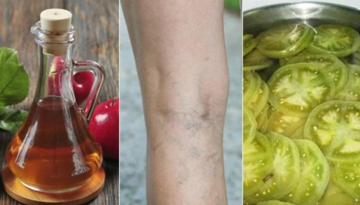 Remedio de vinagre y tomates verdes