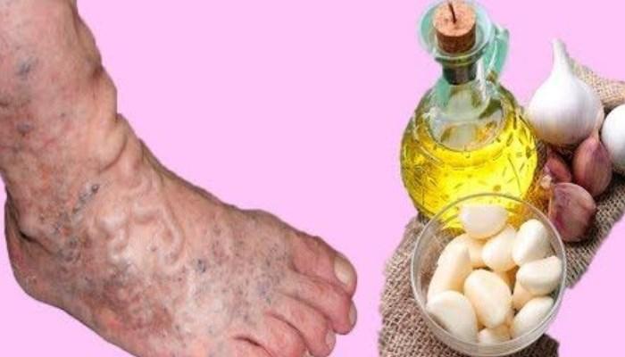 Jugo de ajo con aceite de oliva