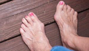 Son cinco los remedios que te presentamos para que elimines los juanetes