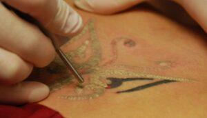 Cómo quitar un tatuaje con las mejores técnicas